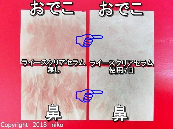 ライースクリアセラムの皮脂チェック